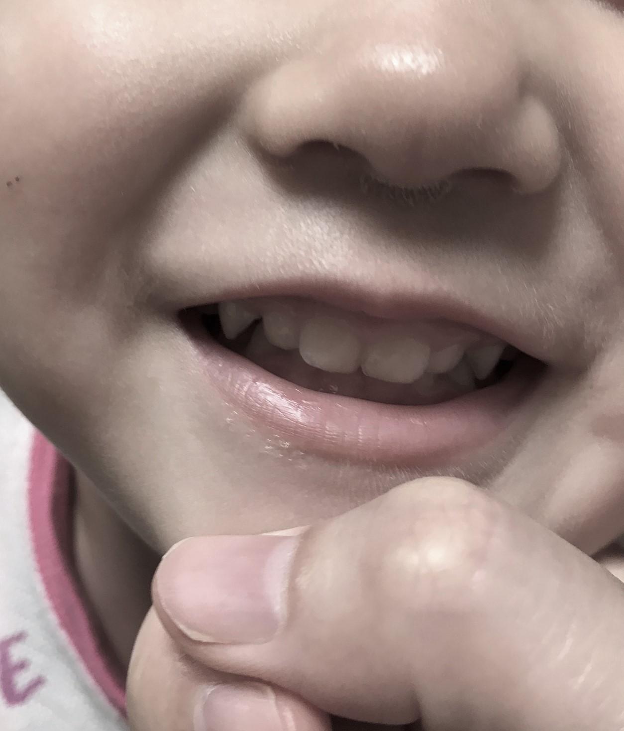 奥歯が生えそろう3歳前。何を食べさせればいい??